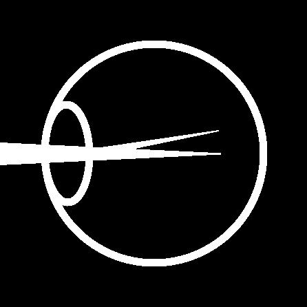 Refractive error icon
