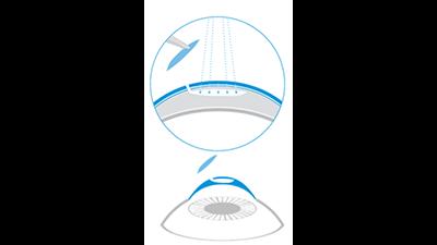 SMILE laser eye surgery procedure diagram
