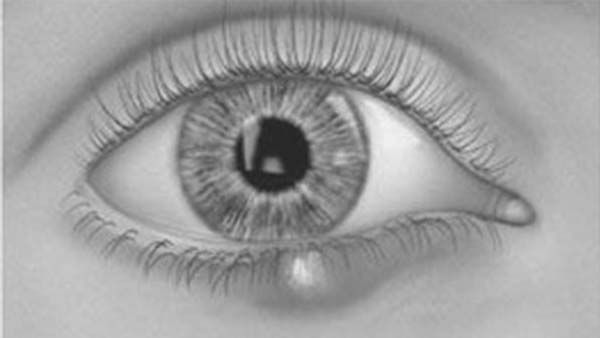 Chalazion showing a lump on the lower eyelid