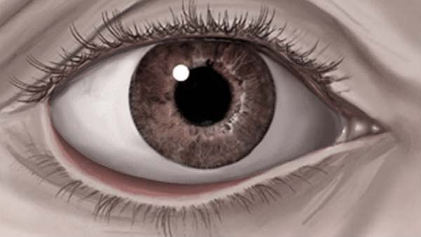 Ectropion showing bottom eyelid turned out