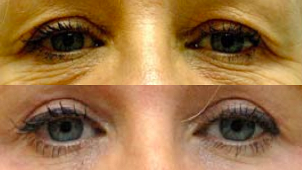 blepharoplasty showing before and after effect