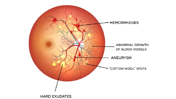 anatomy image showing diabetic retinopathy