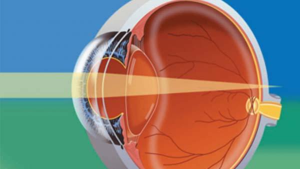 Anatomy image showing light passing through the structures of the eye