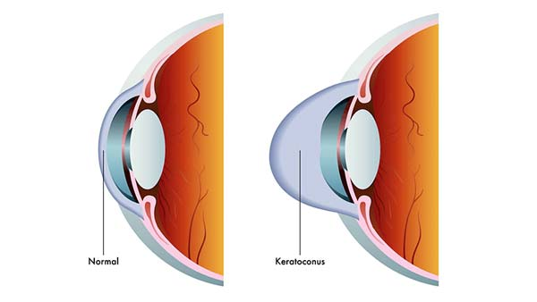 Anatomy image showing Keratoconus