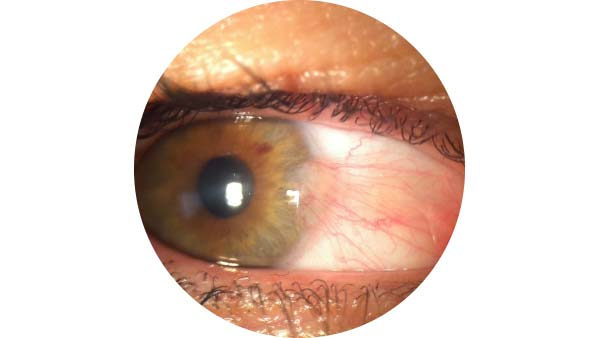 Pterygium shown on an eye