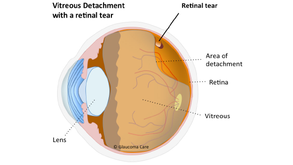 anatomy diagram showing retinal tears and detachment