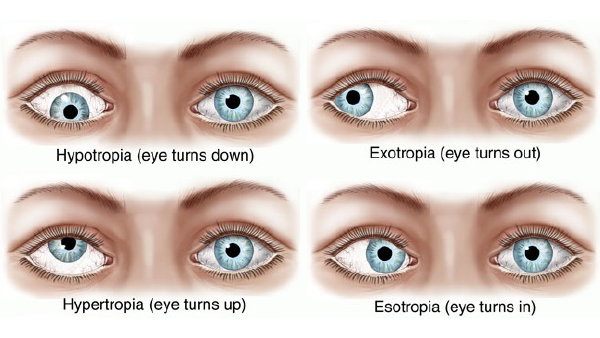 Strabismus eye conditions