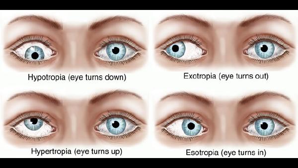Strabismus eye conditions