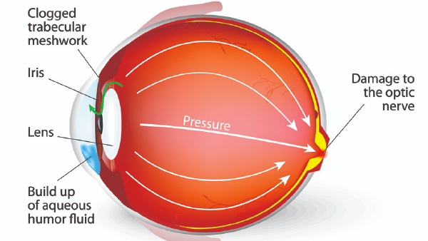 Anatomy diagram of glaucoma