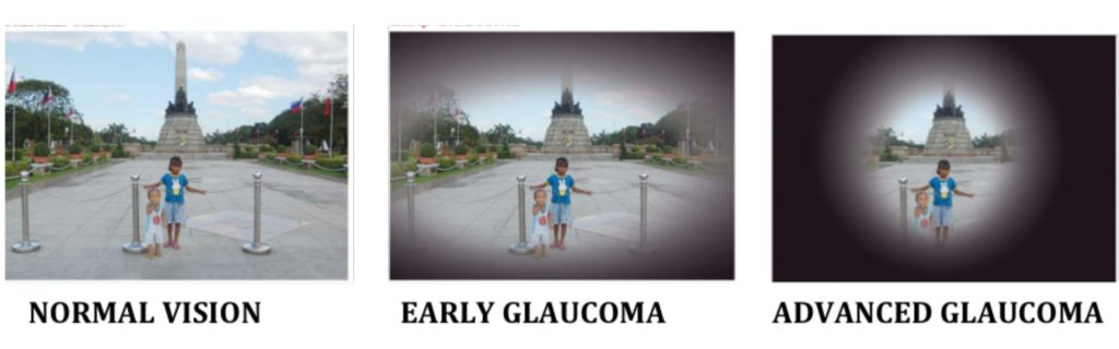 glaucoma affected vision