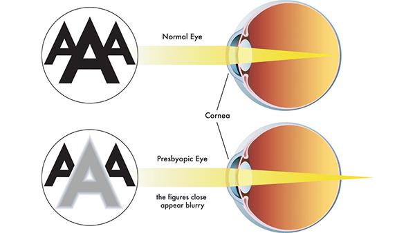 Presbyopia condition showing th normal eye vs the Presbyopia eye