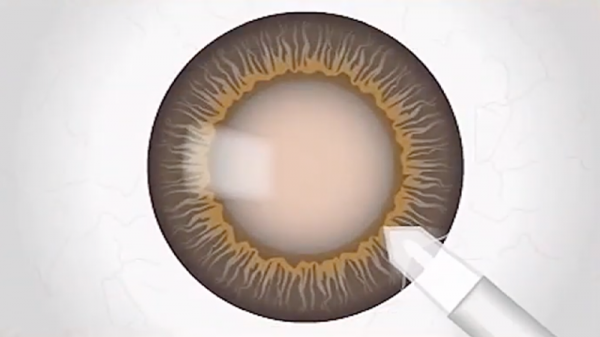 cataract surgery - corneal incision
