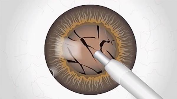 envision-cataract-surgery-2-800x450