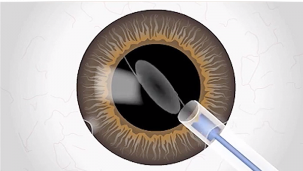 envision-cataract-surgery-3-800x450