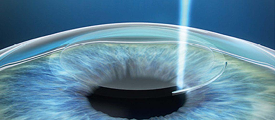 SMILE laser vision correction
